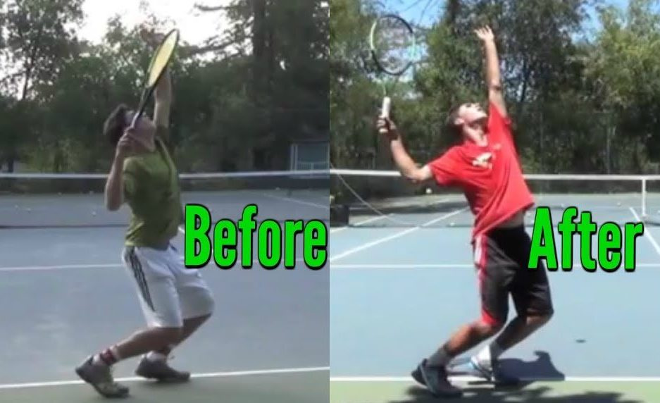 Kick Serve Advice & Progression With A High Ranked Junior